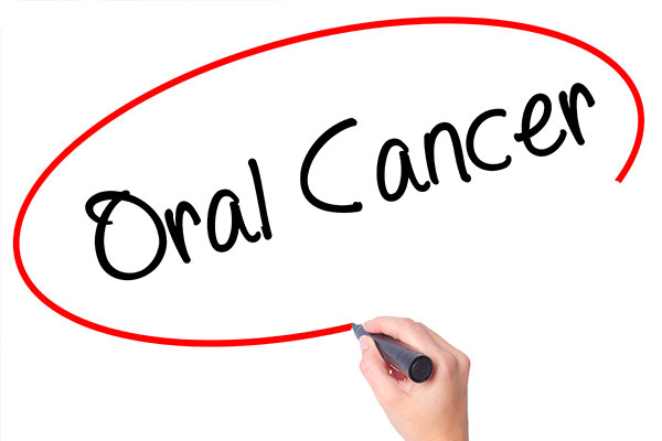 smoking oral cancer risk vaughan dentist