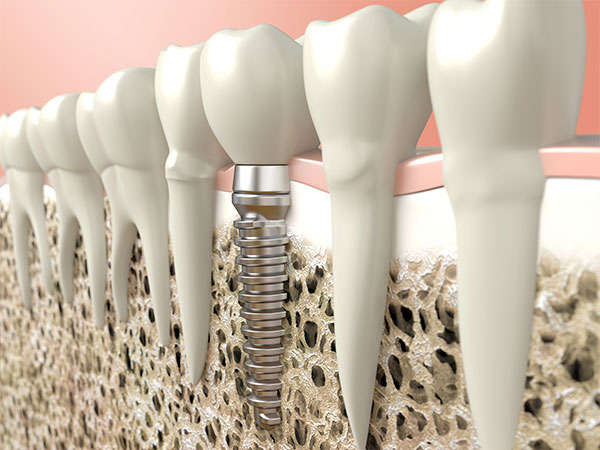 dental implant woodbridge dentist rotundi vaughan
